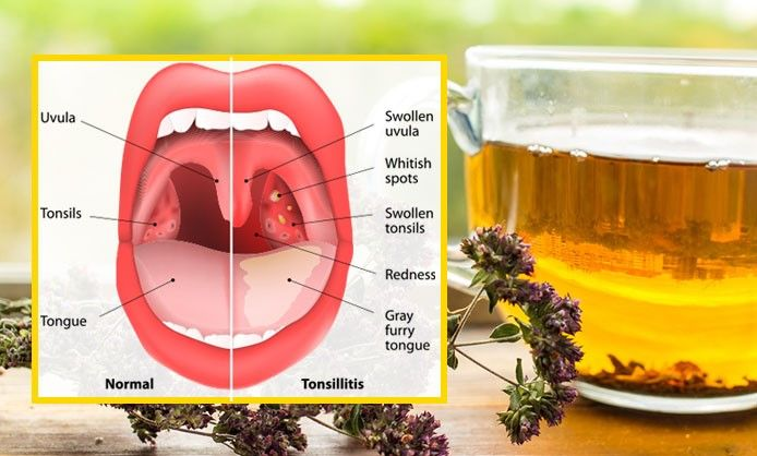 Oregano Tea Can Help You Treat Sinus Infections, Flu, Strep Throat And Many More Health Problems!  http://www.healthyfitlifetime.com/healthy/oregano-tea-can-help-treat-sinus-infections-flu-strep-throat-many-health-problems/
