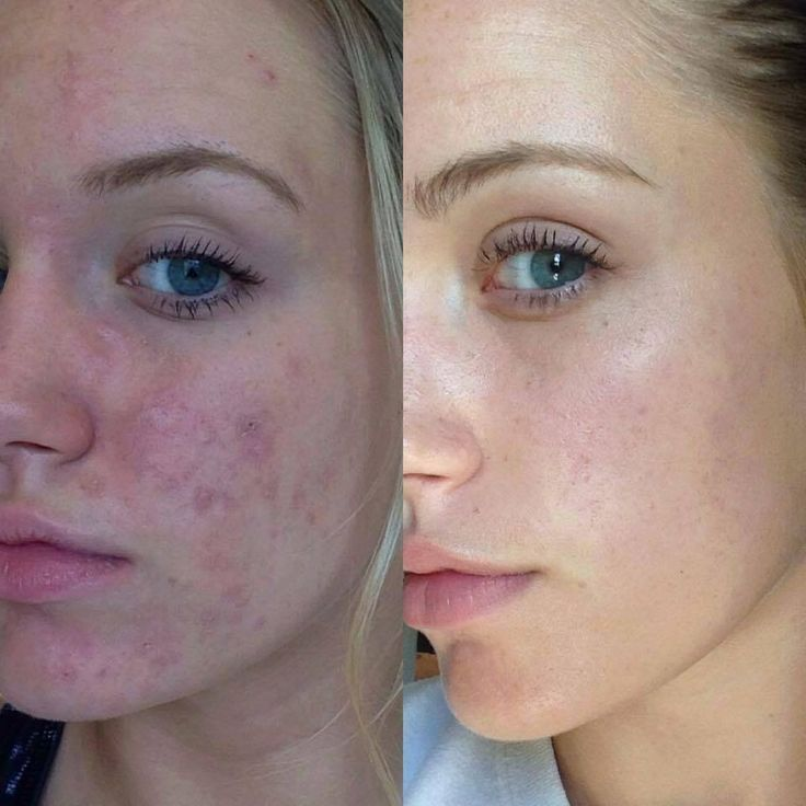 166 Best Break The Acne Cycle Images On Pinterest Skin