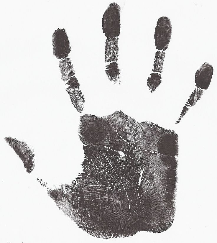 Arch fingerprint Archives - American Academy of Hand Analysis