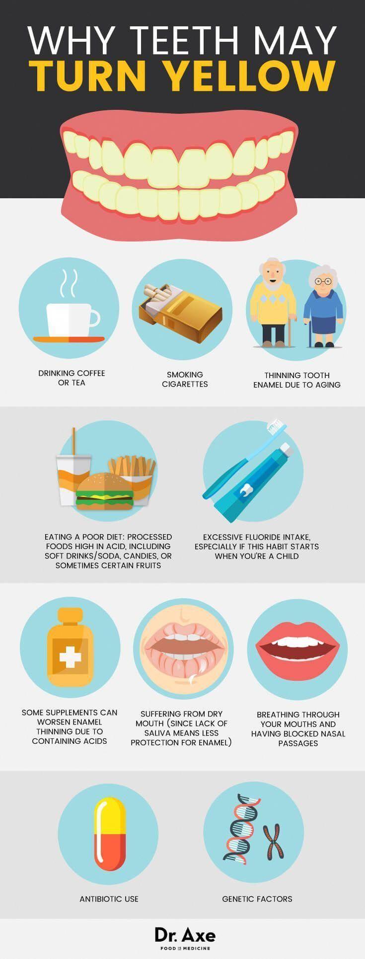 Zähne Werden Gelb