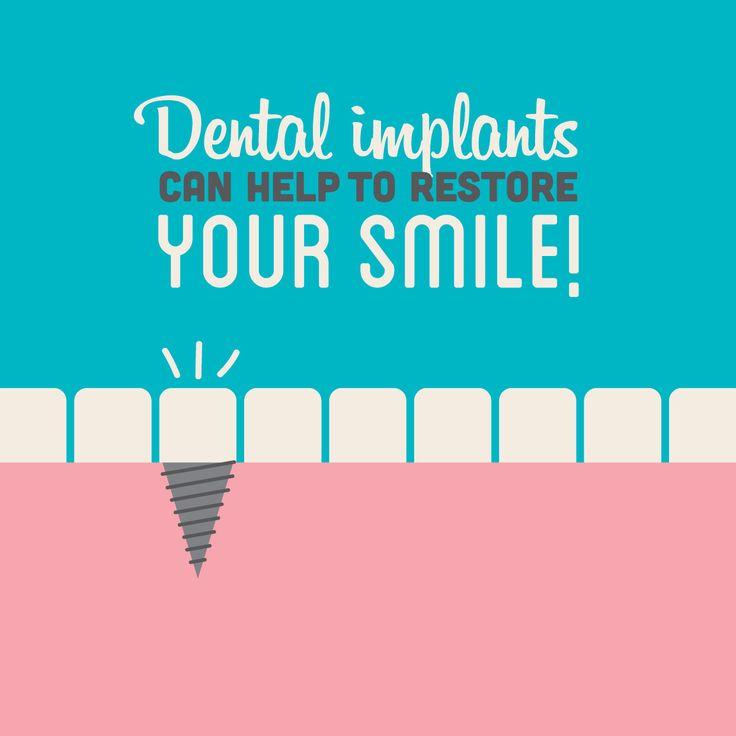 ¿Sabías que... el 69% de los adultos de entre 35 y 44 años han perdido al menos un diente permanente?  ¡Los implantes dentales te pueden ayudar a restaurar esa hermosa sonrisa! Nuestro especialista en Prótesis y Rehabilitación te hará sonreír... ¡literal y dentalmente hablando! XD  http://www.smileacapulco.com/