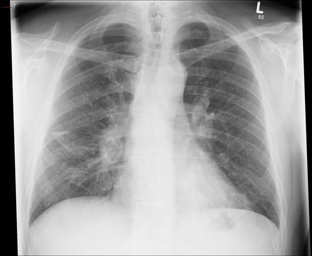 Sarcoidosis is a noncaseating granulomatous multisystem