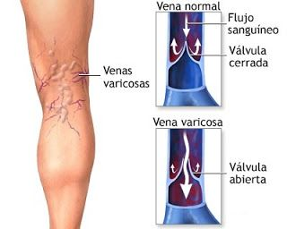 http://www.unavidalucida.com.ar/2012/09/remedios-naturales-para-las-varices.html