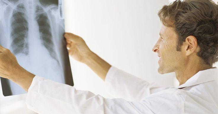 O que causa o congestionamento pulmonar?. A congestão no peito é um sintoma de doenças e infecções crônicas que provocam a acumulação de muito muco nos pulmões e tornam a respiração difícil e dolorosa. Suas causas incluem infecções virais, bacterianas e fúngicas no sistema respiratório superior, algumas das quais são comuns e outras que são raras em pessoas saudáveis. Leve em ...
