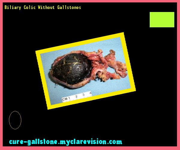 Biliary Colic Without Gallstones 160305 - Cure Gallstone