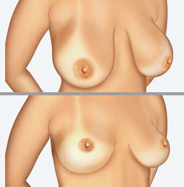 Indicada para melhorar o aspecto estético da mama, a Mamoplastia Redutora é uma das mais comuns dentre as cirurgias estéticas, pois, também é indicada como recurso complementar no tratamento profilático de certas doenças da mama e como prevenção de problemas causados por mamas muito grandes.  Saiba mais, marque uma consulta pelo telefone 3222.6939 e tire todas as suas dúvidas.  Instagram siga @clinicachrisostomo  Twitter @phph1974 www.clinicachrisostomo.com.br Blog: http://bit.ly/1ipu6U0