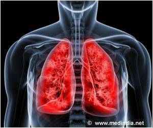 Thanks pulmonary hemorrhage causes in adults congratulate, what