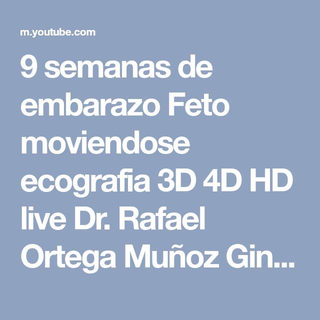 9 semanas de embarazo Feto moviendose ecografia 3D 4D HD live Dr. Rafael Ortega Muñoz Ginecologo - YouTube