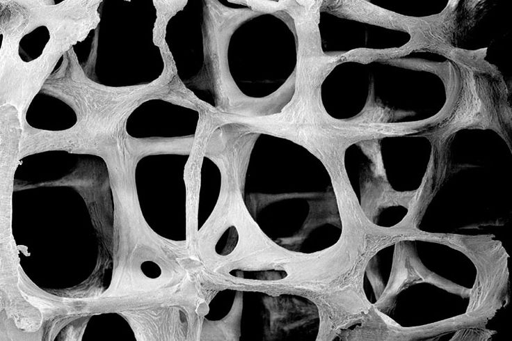 Our bones form a skeleton to our body. Without them the body cannot support itself. When there is a disease in the bone it affects the bones. One such disease is osteoporosis. Osteoporosis is a disease in which the density and quality of bone are reduced. As bones become more weak and porous, the risk of fracture is greatly increased. Osteoporosis and its risk factors must be considered together.