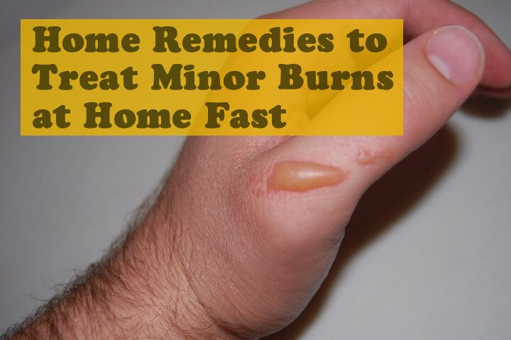 Home Remedies To Treat Minor Burns At Home Fast Home Remedies For Burns Burn Skin Home Remedies Burn Remedy
