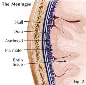7 best meninges 1 images on pinterest human body nervous system la aracnoides es la capa intermedia situada entre la duramadre y la piamadre su ccuart Choice Image