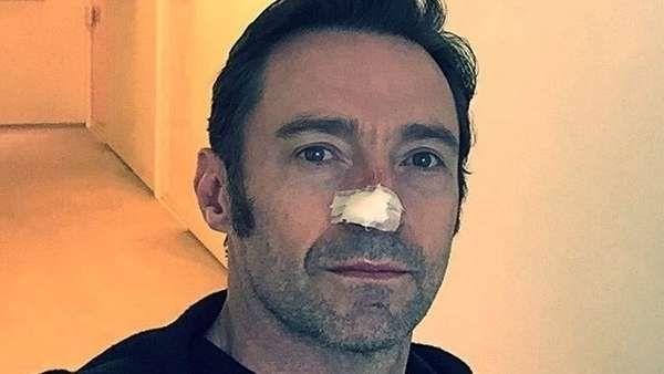 Hugh Jackman fue operado otra vez por su cáncer de piel El actor subió una imagen a Instagram con un mensaje alentando a sus seguidores a prevenir la enfermedad. Fuente ... http://sientemendoza.com/2017/02/14/hugh-jackman-fue-operado-otra-vez-por-su-cancer-de-piel/