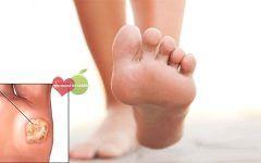 Tratamento Natural Contra Verrugas Plantares