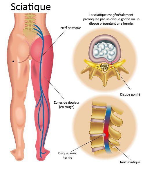 Prévention et traitement de la sciatique - Améliore ta Santé
