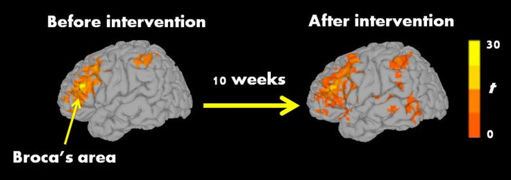 For families with school aged children-Autistic children improved reading, brain activity after 10-week reading intervention -- ScienceDaily