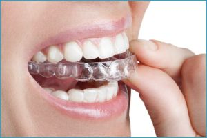 3D Smile – красивая улыбка без брекетов