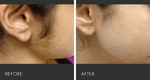 Epilation garantie à vie : astuce entièrement naturelle pour vous débarrasser des poils indésirables de façon permanente