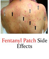 Fentanyl Patch Side Effects