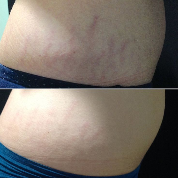Check out these Venus Viva stretch mark removal results for one of our clients! #tuscansunspa #tuscanmedspa #tuscansunspaandsalon #tuscanmorgantown #venusviva #stretchmarks #stretchmarkremoval #realresults