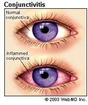 What Causes Pinkeye?