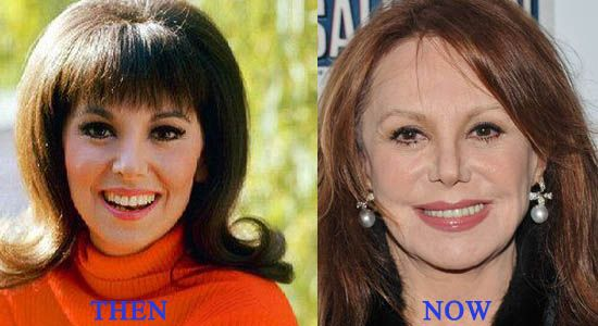 Marlo Thomas Plastic Surgery Gone Wrong Celebrities