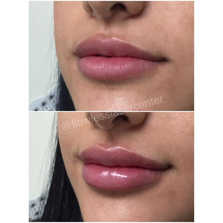 What a flawless before and after! To achieve this clients perfect pout, we injec…