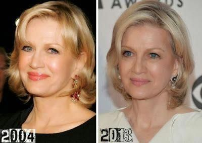 Diane Sawyer Plastic Surgery Facelift, Botox Injections, Browlift, Necklift Befo…