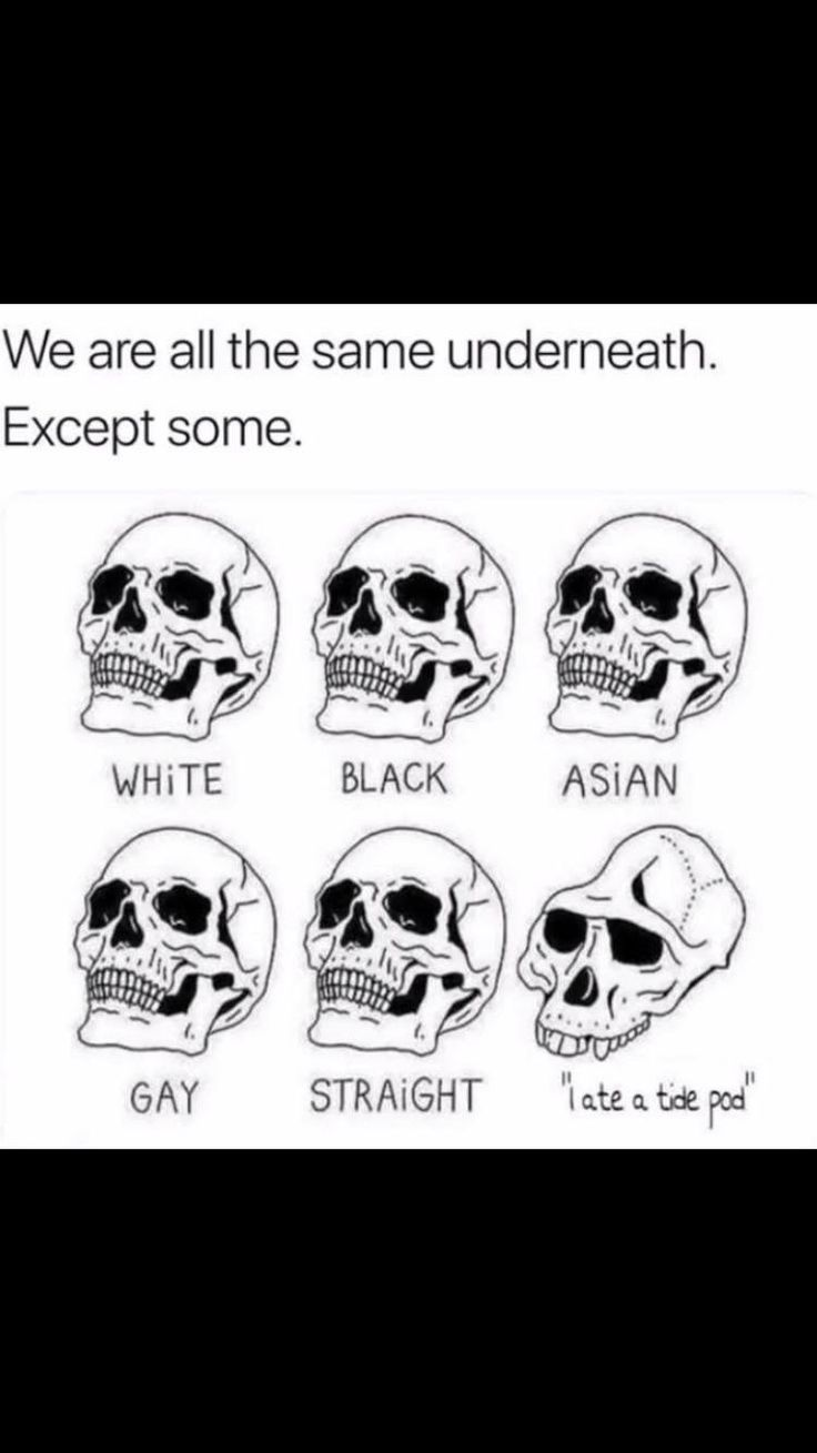 Truth is, there are actually differences in the skulls of the different races. Asian skulls tend to be smaller and more round, white tend to be long and have a semi round shape and black tend to have stronger bone shapes and longer faces