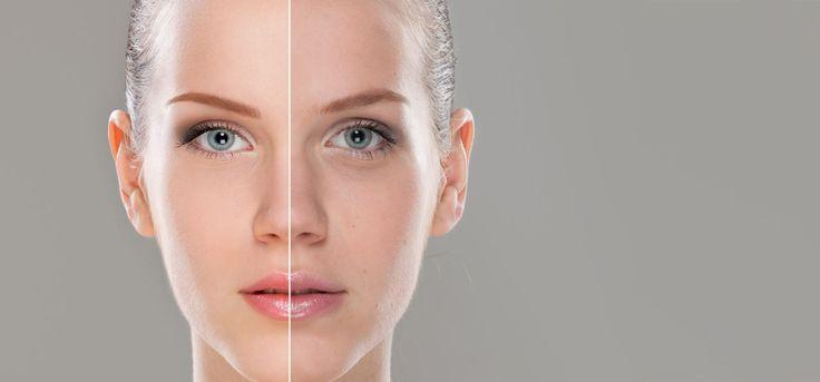 25 Simple Tips To Remove Skin Pigmentation