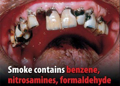 Smokers Teeth. This is eventually what happens when you smoke for years and years. Scared Straight yet??