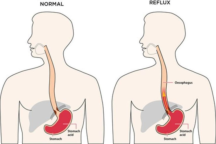 """What is Heartburn?   The colloquial term  """"heartburn"""" refers to the painful feeling that results from acids in your stomach flowing backward into the esophagus. Heartburn is a common problem  affecting 20% of the population. Also known as """"gastroesophageal reflux disease """" or """"acid reflux """" the popular name is misleading  as it has nothing to with the heart. Mild  occasional […]   The post  What is Heartburn?  appeared first on  Online Health Lab ."""