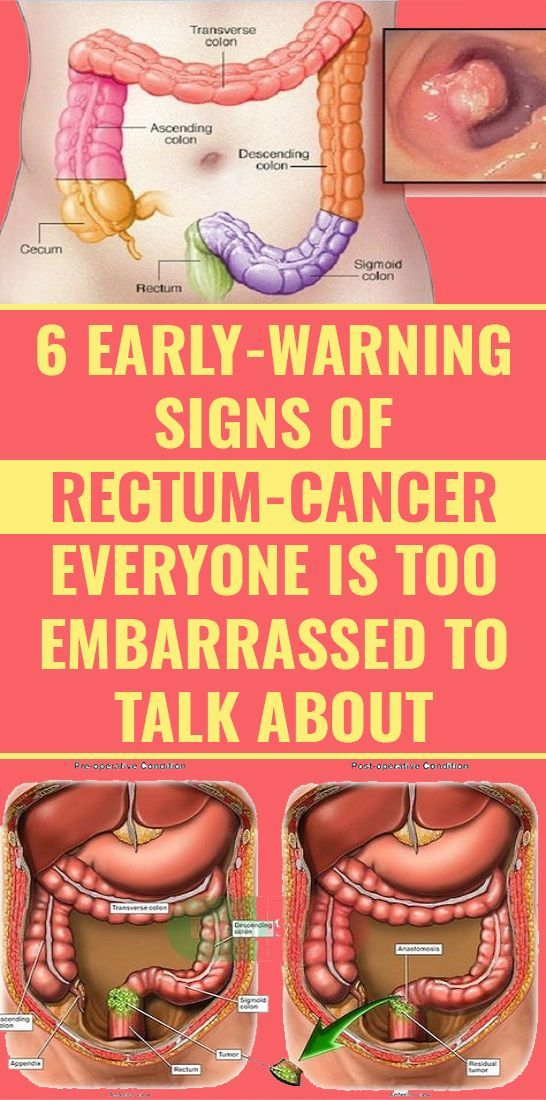 6 Unusual Signs of Anal Cancer You Shouldn't Ignore  – Carolyn Tirrell