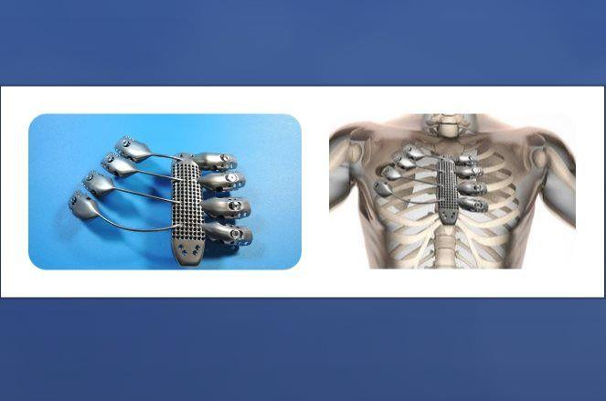 Lee Paciente español recibe parte de la caja torácica usando impresión 3D en titanio
