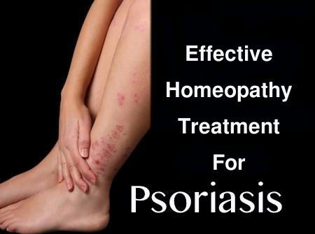 Psoriasis is attacked through viral infections, Several bacteria and polluted atmosphere. It will change skin appearance with irritating pain. Symptoms are frequent itching and reddened skin. Homeopathic medicine will cure psoriasis problems and makes skin as smooth without causing any side effects. Homeocare International provides psoriasis treatment in homeopathy through homeopathy specialists. Homeopathy also cures the Psoriasis Arthritis disorders without any side effects.