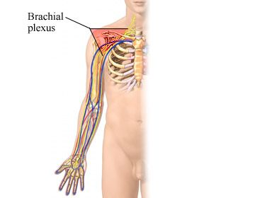 A burner is an injury to the bundle of nerves that runs from the back of your neck into your arm. These separate nerves come together in the upper shoulder to form the brachial plexus. From here, the nerves go to all the arm muscles. A burner is often called a stinger.