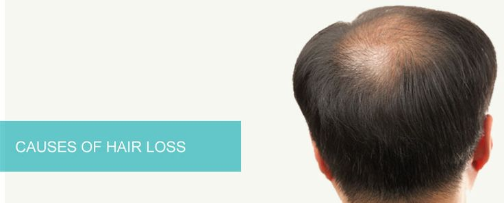 To find causes of hair loss please visit http://www.enhanceclinics.in/hairloss/causes-of-hair-loss now!