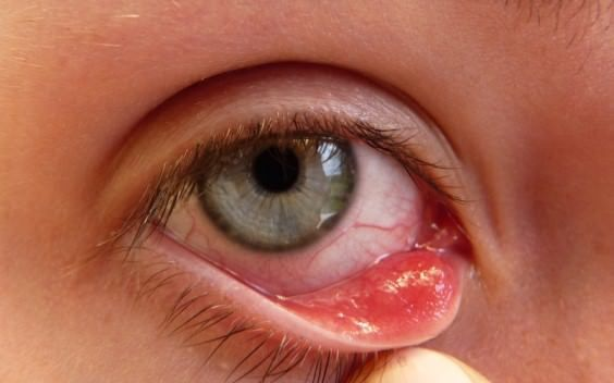 """How to use home remedies for pink eye treatment or get rid of pink eye? Pink eye is usually known as """"conjunctivitis"""" and is caused by a virus or ..."""