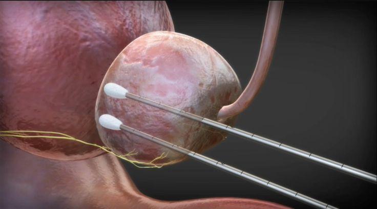 Tecnología en frío a favor de pacientes con cáncer, crioablación – pleniluni…