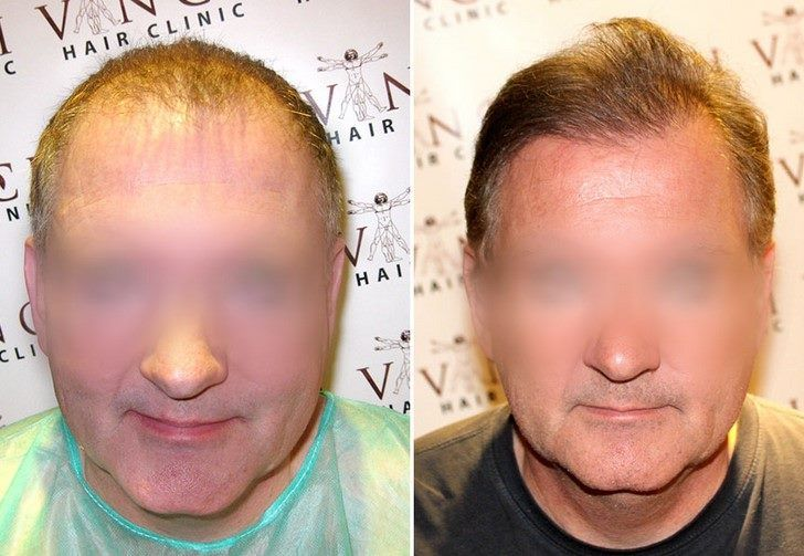 Having noticed that his hair was becoming progressively thinner at the hairline and crown, this client came to Vinci Hair Clinic for specialist help. He opted for hair transplant surgery to restore his lost hair, with excellent natural-looking results. ⭐️⭐️⭐️⭐️⭐️    Book your free consultation - We have clinics worldwide! https://www.vincihairclinic.com/locations/