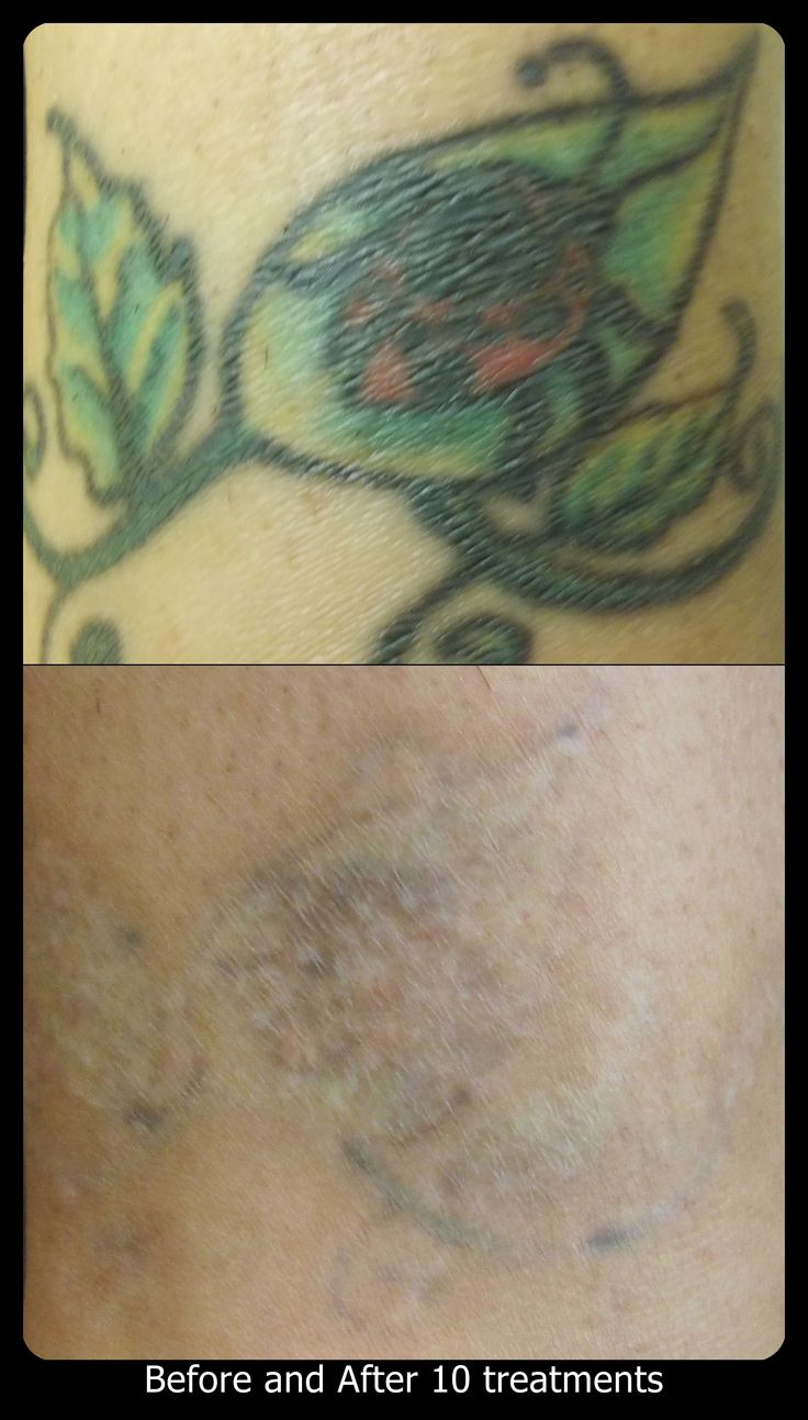 53 best vanish laser tattoo removal progression pictures