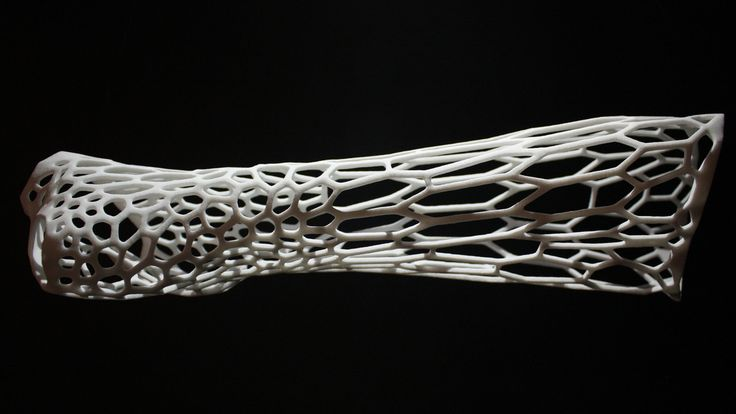 3D printed cast - the cast of the future? #3Dprinting