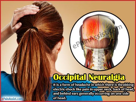 Occipital Neuralgia or C2 Neuralgia can cause very intense pain that feels like a jabbing, sharp electric shock like sensation in the back of the head and neck. Primary treatment consists of pain relievers or analgesics that may be effective in reducing the pain.