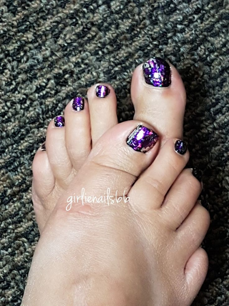 Flakies on toes