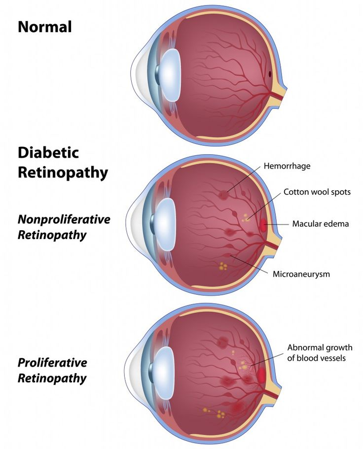 Get the Reliable treatment of Diabetic Retinopathy through Ayurveda in Jaipur India at Prakash Nethralaya & PanchKarma Kendra, Jaipur,India...