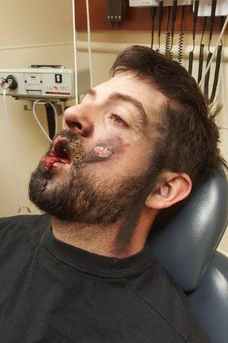Homem perde dentes e sofre queimadura de 2º grau em explosão de cigarro eletrônico