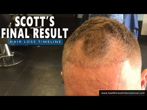 FUE Hair Transplant - Final 21 Month Result Timeline - Hair loss treatment / baldness for Men 2016 -  How To Stop Hair Loss And Regrow It The Natural Way! CLICK HERE! #hair #hairloss #hairlosswomen #hairtreatment FUE Hair Transplant – Final Result Timeline – Hair loss treatment / baldness for Men 2016  Patient: Scott, 32 Norwood Scale: 3/3A Number of Grafts: 3,100 Sessions:... - #HairLoss
