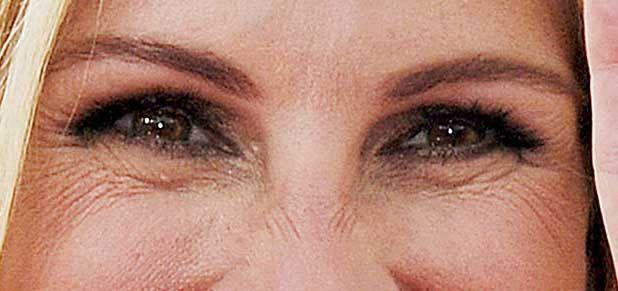 كيف أعالج تجاعيد العين Health