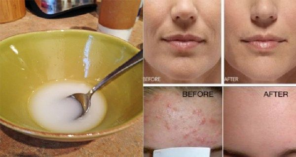 Many people are struggling with wrinkles and stains on their face. Fortunately, we have an amazing solution that will restore the glow of your skin. You'd better stop spending your money on products