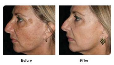 Great Co2 Fractional Laser Treatment