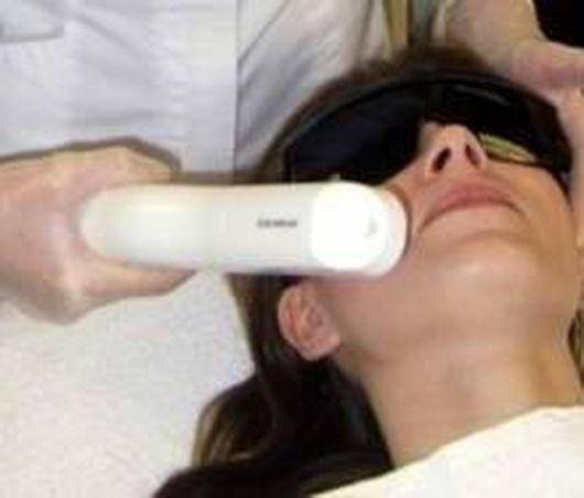 #IPL acne scars is a popular option, not over expensive, and not always effective laser treatments. IPL stands for Intense Pulse Light. This treatment is usually more cost effective in large part due to the fact that the machines themselves are less expensive to buy and operate. Even so, the results for many have been very good.
